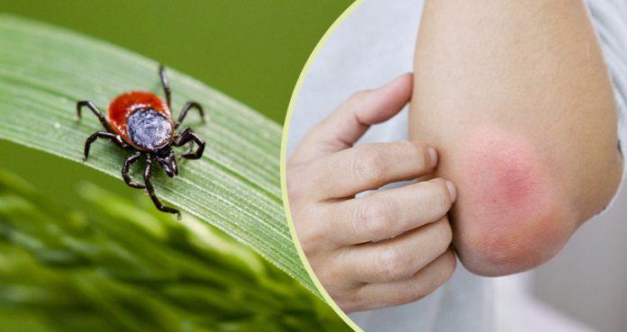 $100 Million to Combat Lyme Disease