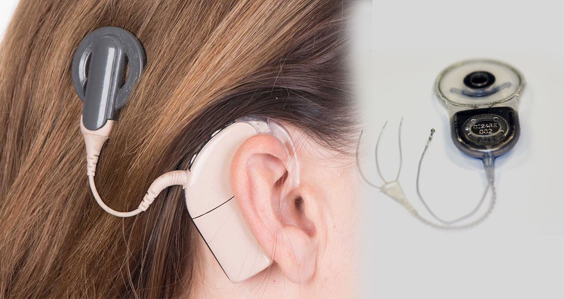 New-Vestibular-Implant-Improves-Balance-and-Movement-in-Patients-with-Inner-Ear-Disorder